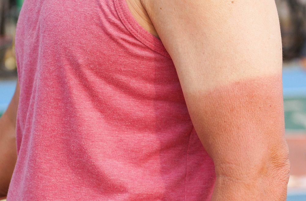 10 things that make a great British holiday: Man with sun brunt arm and bad tan lines